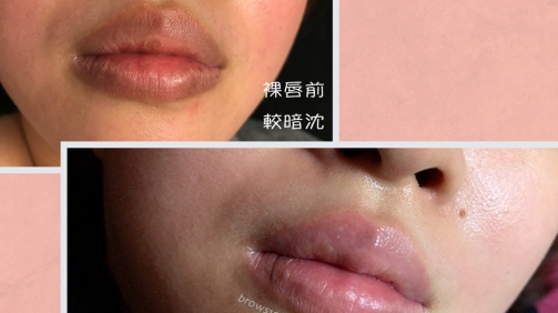 做完色素淡化後的唇色看起來明亮許多!