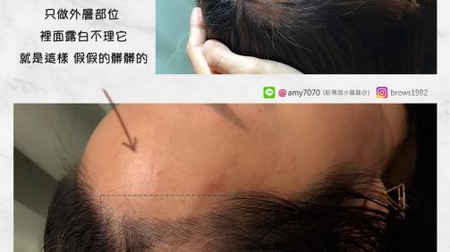 客製化髮際線,擁有自己的特色