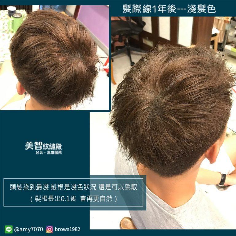 做了髮際線也能染頭髮,且絲毫無違和感
