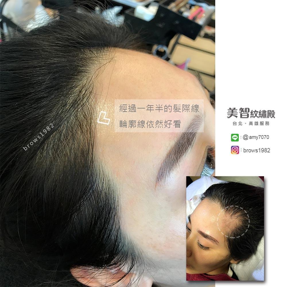 原本空一大洞的髮際線,露出額頭好不自然,好不柔和!做完髮際線後,即便經過一年半,依然相當自然!