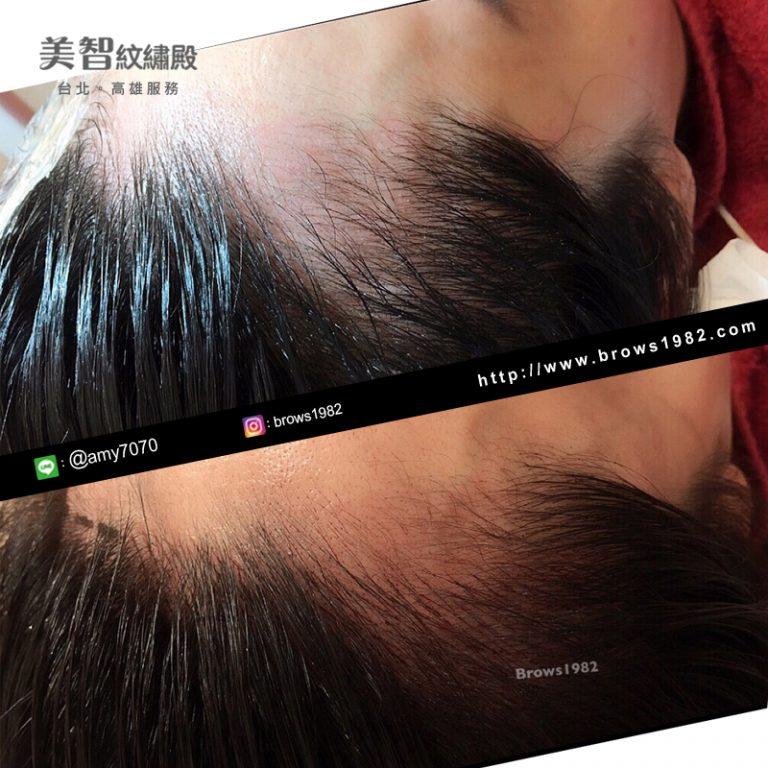 不齊的髮際線,經過調整不會假假的