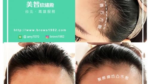 幫您解決髮際線凹凸不整齊的困擾!