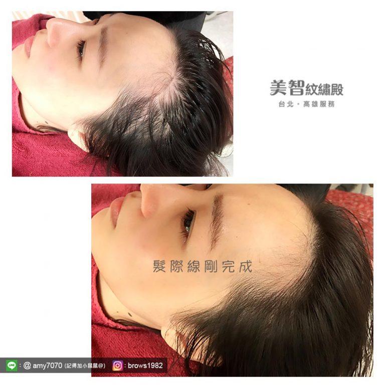 高雄紋髮際線成功案例-高雄髮際線推薦