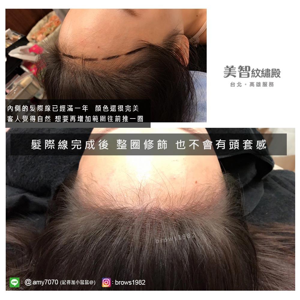 原本內側做好的髮際線,已滿一年,顏色依然維持的很自然,現在想要將範圍再往前推一圈。完成的髮際線,不會有頭套感,相當自然喔!