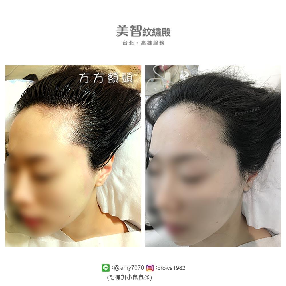 髮際線兩側稀疏、空洞,經由美智紋繡殿,髮際線調整,自然不造作喔!