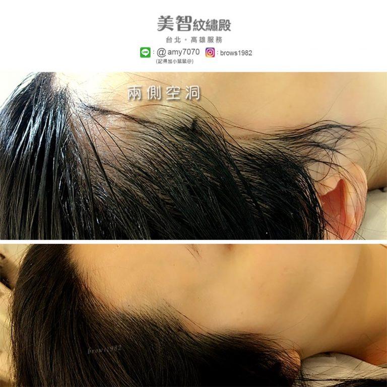 調整後兩側空洞,髮際線是不是更柔和