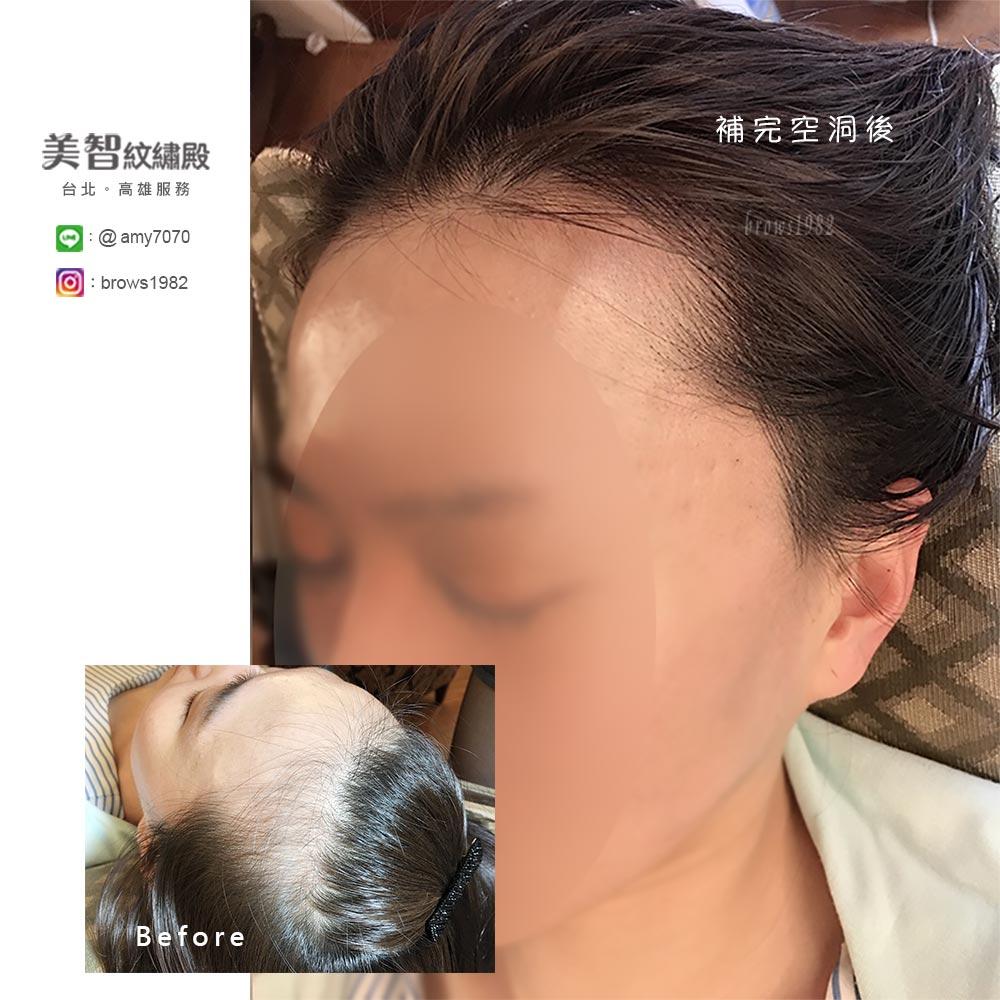 髮際線兩側空洞問題嚴重,紋髮際線後,髮量看起來更豐厚了!給人更年輕的感覺