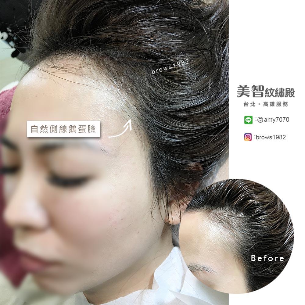 經由專業紋髮際線,自然側臉,相當好看
