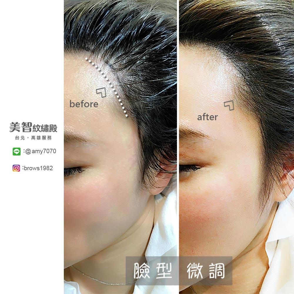做完鵝蛋臉髮際線後,臉型變得更圓潤,跟髮際線空洞說掰掰!