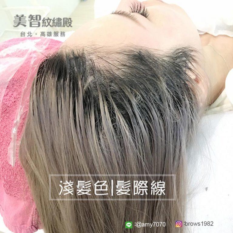 染過髮空洞且稀疏髮際線也能做!