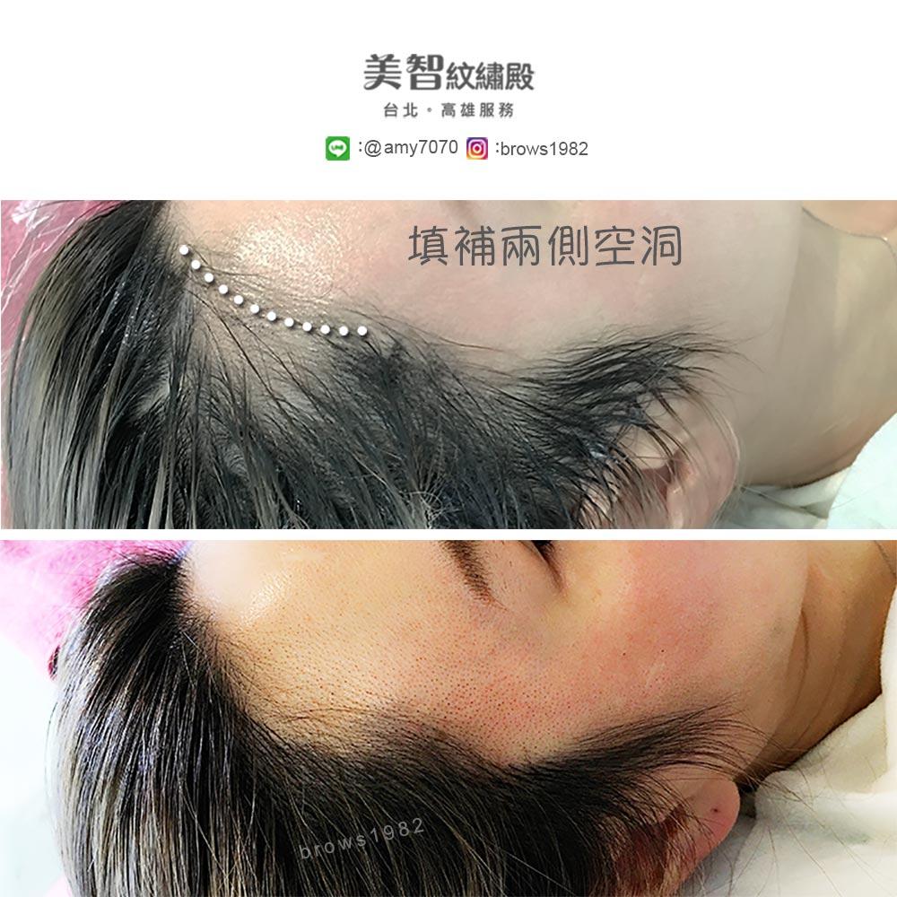 髮際線兩角空洞,透過紋髮際線,成果看起來相當自然喲!