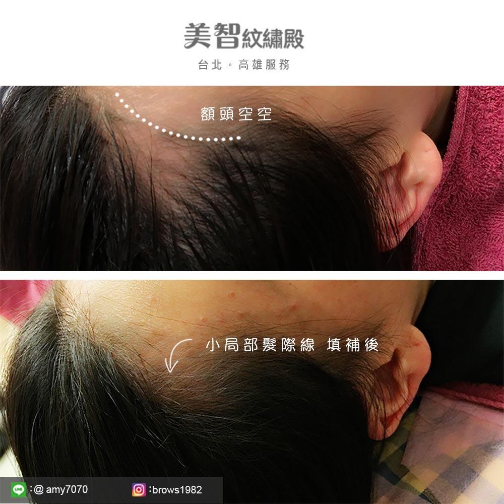 小局部髮際線稀疏也可以調整,額頭角角不好看,尤其空姐因為工作需求,常常要綁包頭。