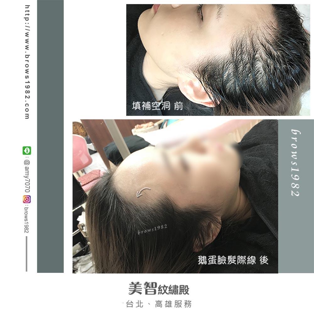 兩側空洞、稀疏,臉型看起來很不柔和,經過紋髮際線之後,髮量看起來更豐厚,即便有染髮、淺髮色也可以做喔!