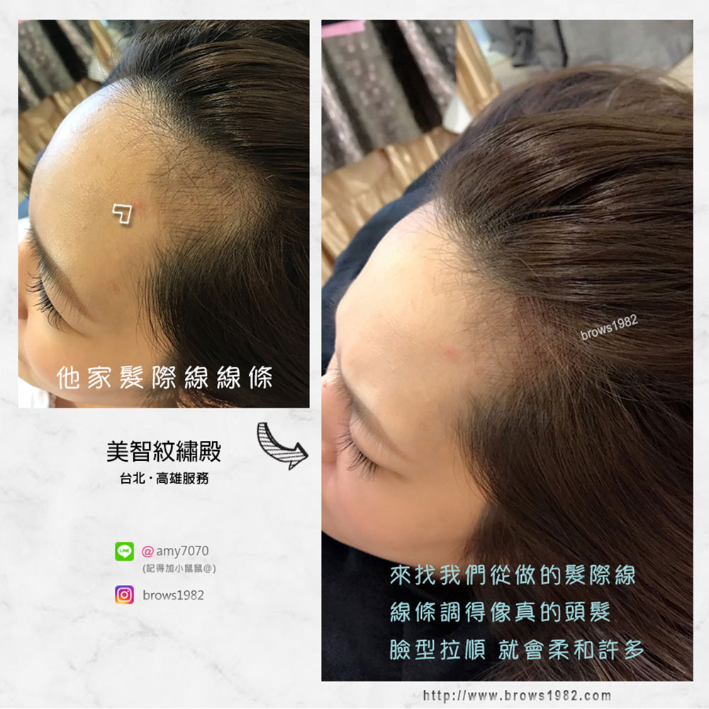 淺髮色髮際線設計(髮際線三角洲補滿)-美智紋繡
