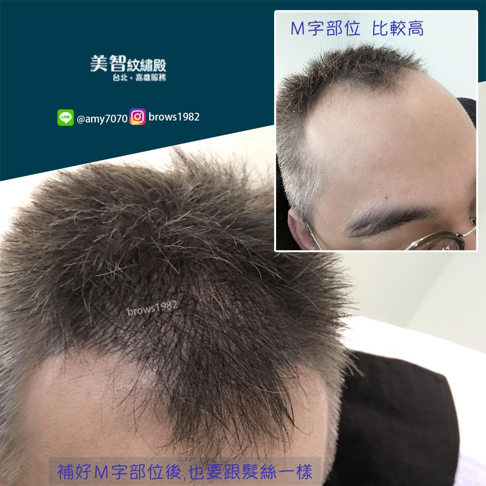 髮際線後退怎麼辦?交給美智,專業的髮際線修補!