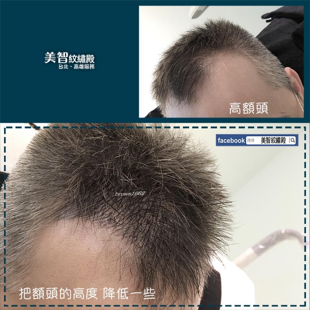一直後退的髮際線空洞問題。