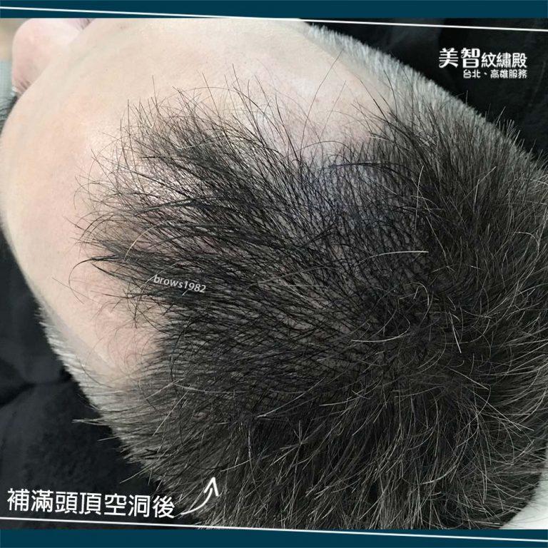 髮量稀疏,來美智填補髮際線空洞問題~