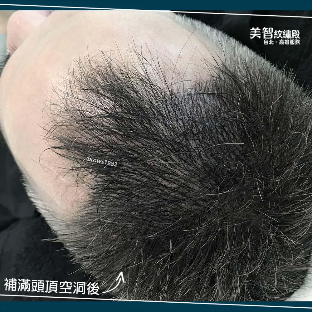 髮量稀疏不一定要靠執法,來美智填補髮際線空洞問題~