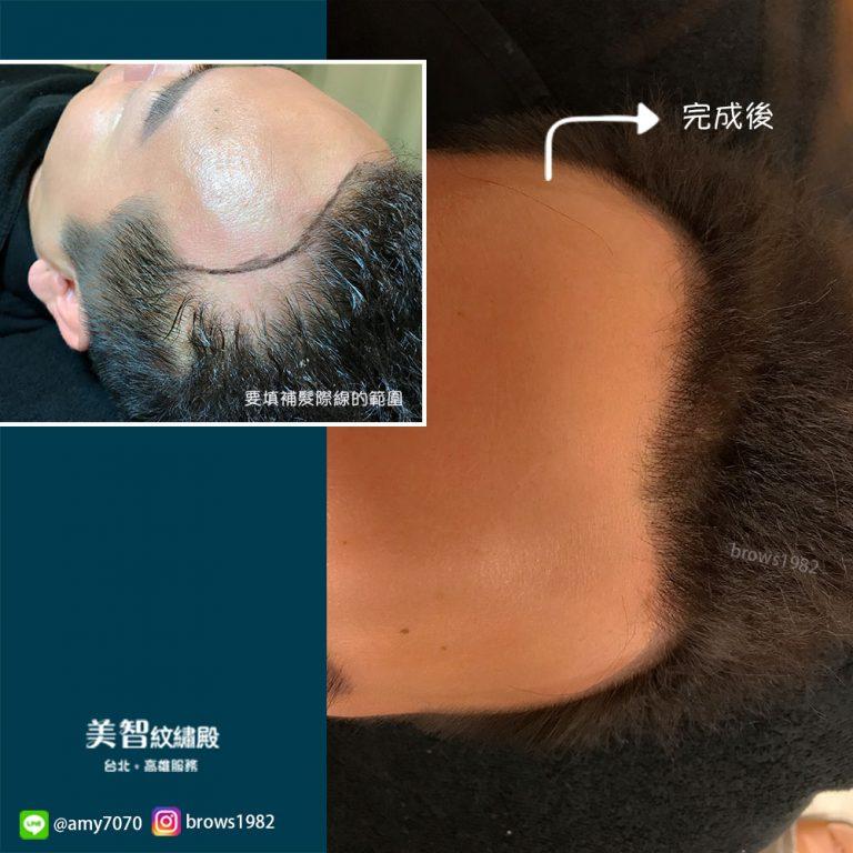 調整好的髮際線不會有不自然的頭套感!