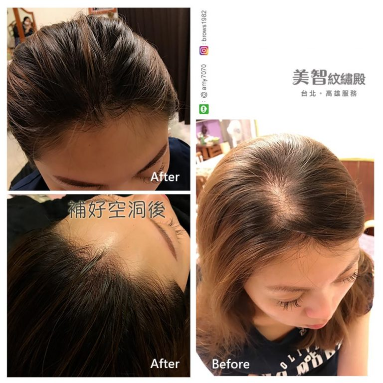 髮際線修補,不再困擾產後落髮問題