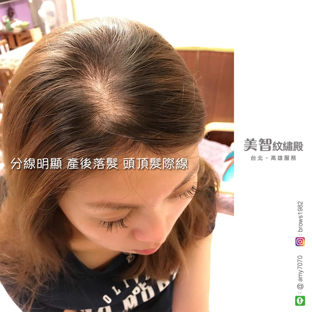 有了髮際線修補的發明,讓媽咪不困擾產後落髮的問題!