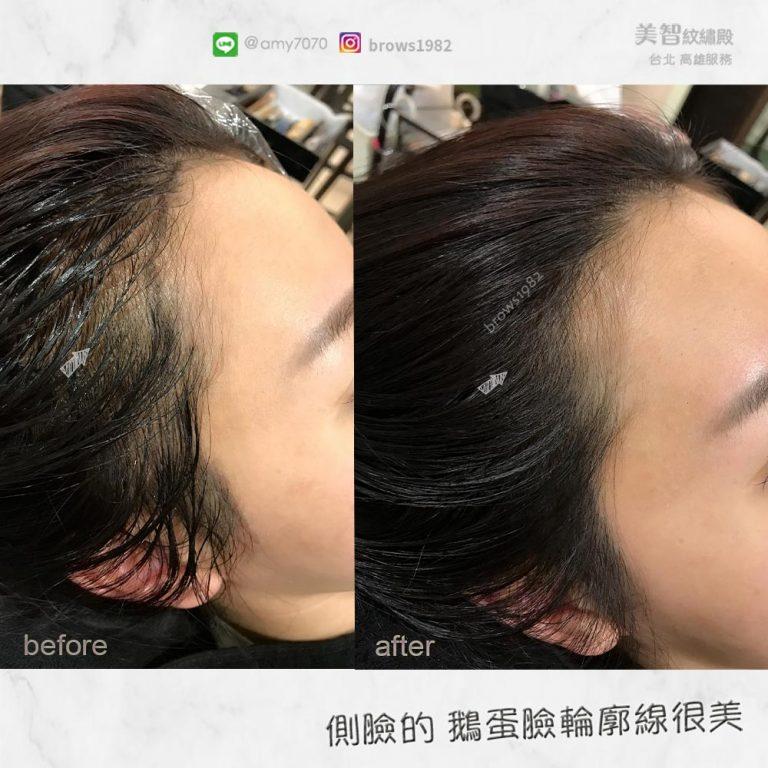 鵝蛋臉髮際線,讓臉部線條看起來更柔和