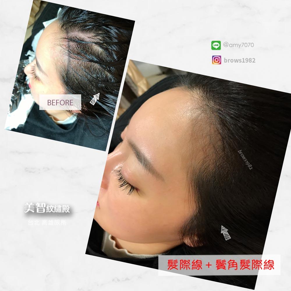 髮際線調整除了可以補髮際線空洞,也能做鬢角髮際線喔!