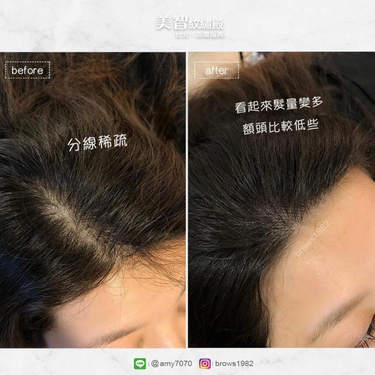 分邊稀疏,補色後髮際線不再空洞