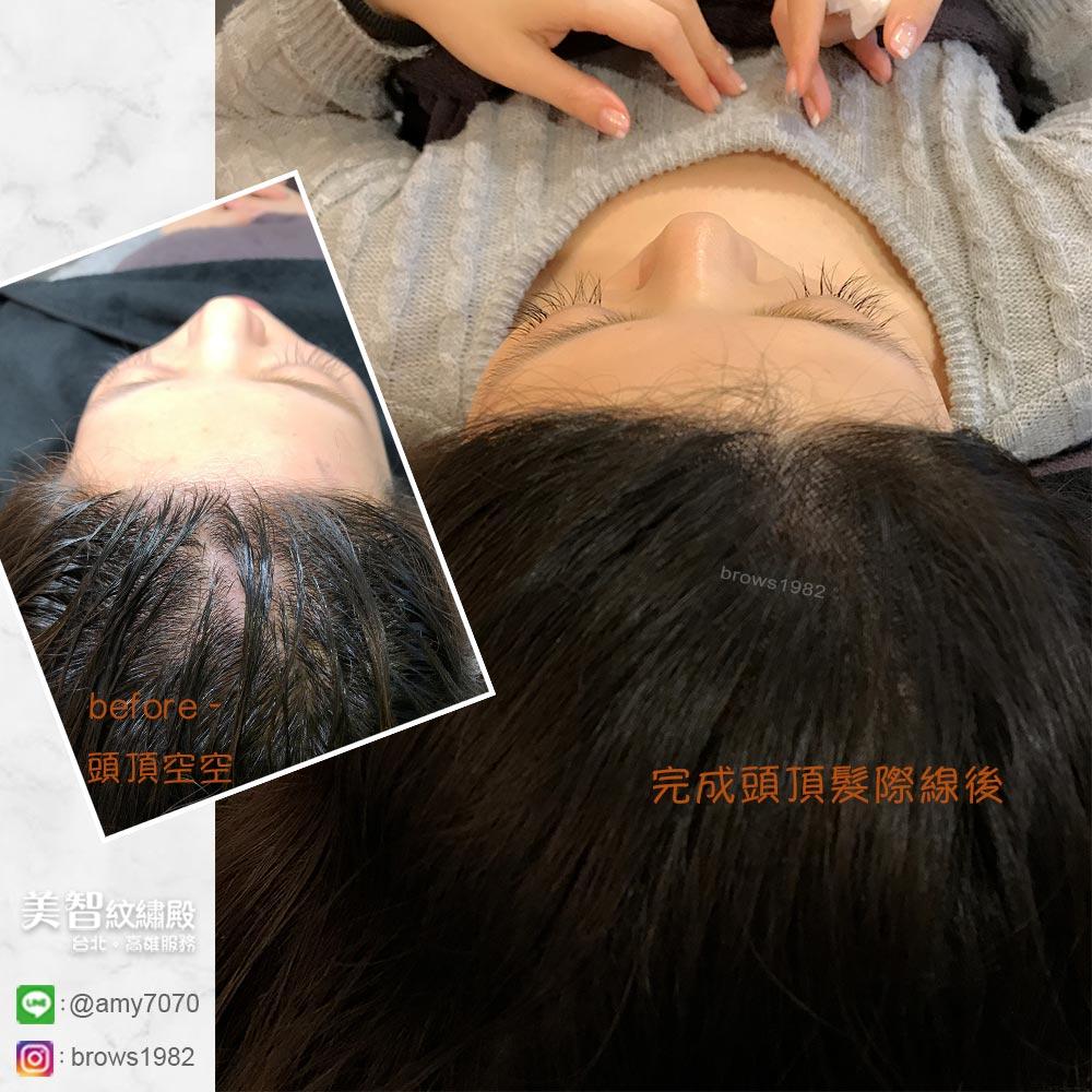 頭頂空洞的地方在補色後,視覺上明顯讓髮量便豐厚了。