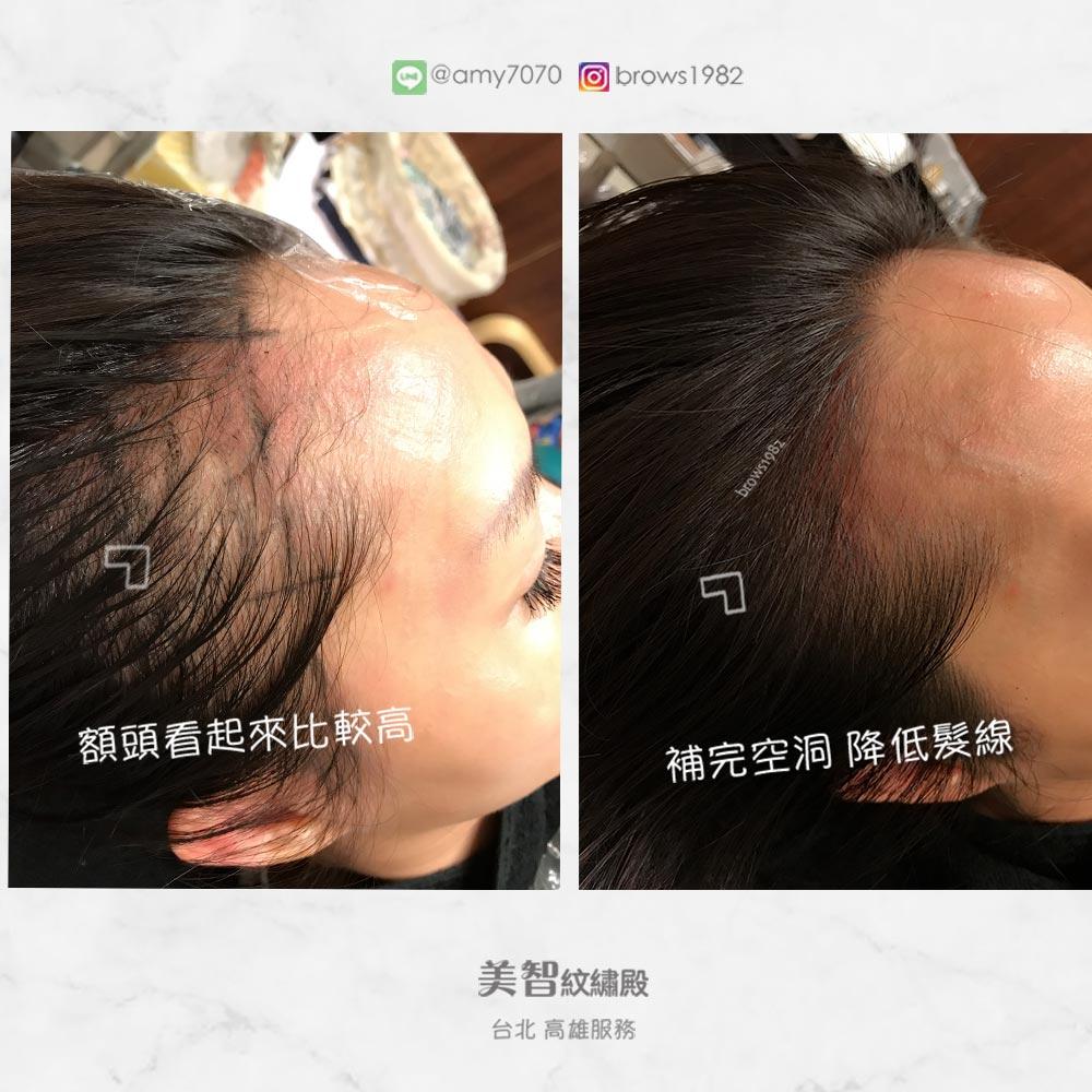 補完空洞髮際線就能降低額頭高度