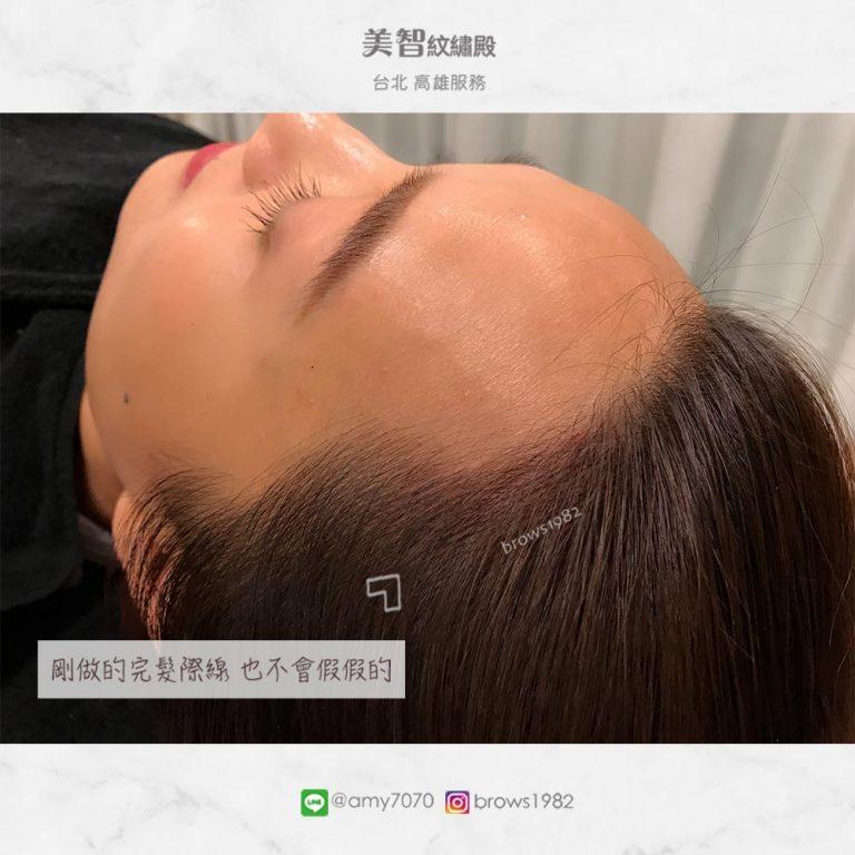 剛做好的髮際線幾乎與髮絲融合在一起!