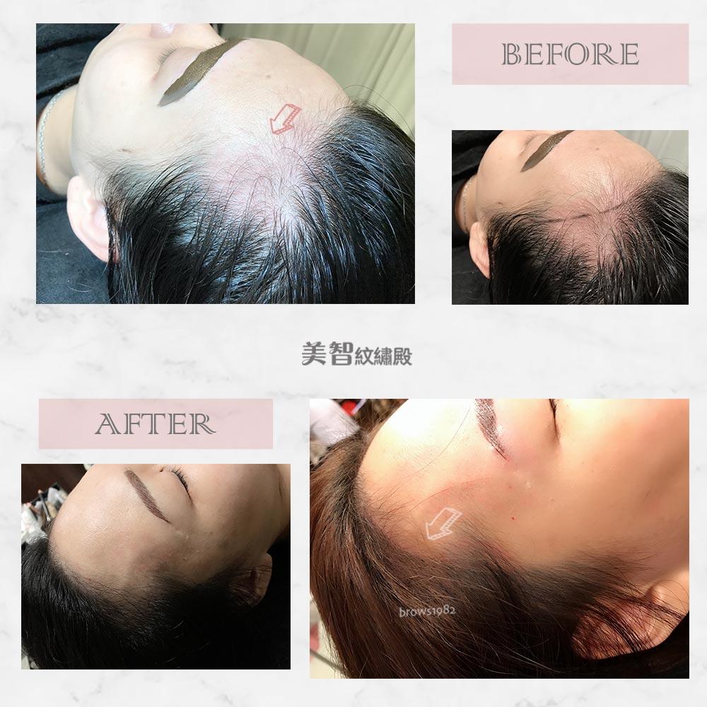 額角空洞就交給美智紋繡殿幫你做髮際線調整!