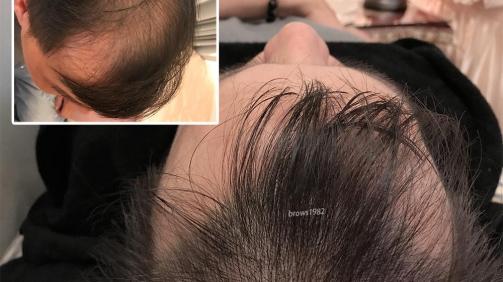 髮際線倒退、空洞問題明顯。