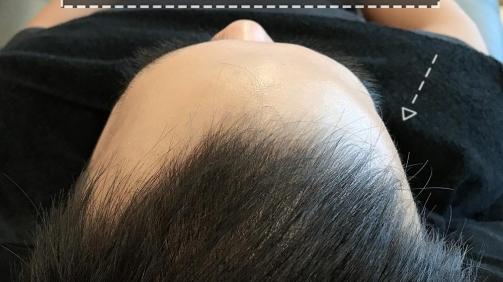 幼班顛的髮際線已經修補完成囉