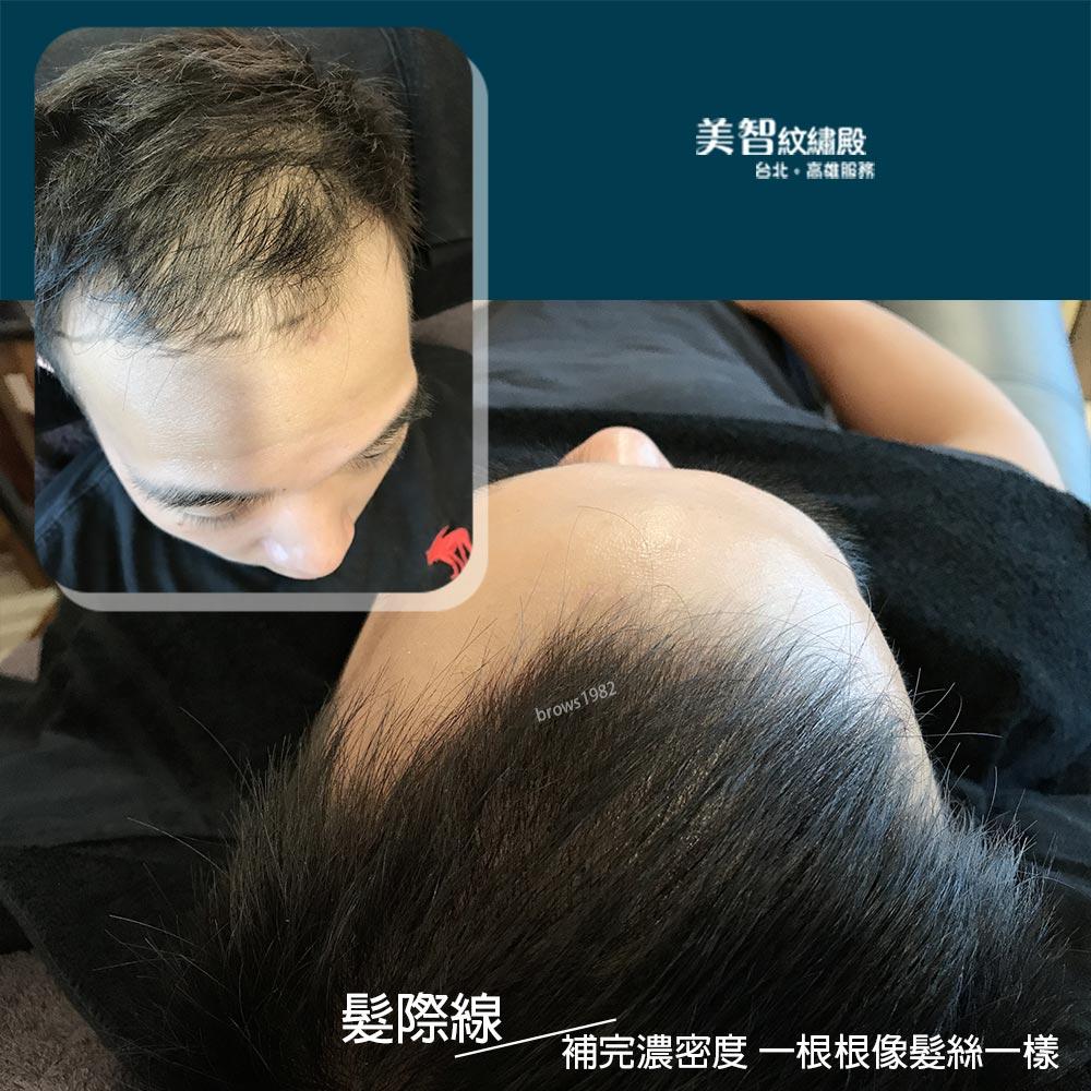 髮際線修補濃密度後,就像原本的髮絲一樣!