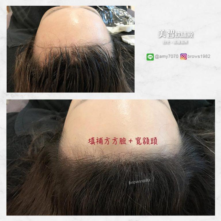 髮際線調整後,方臉也能變成鵝蛋臉!