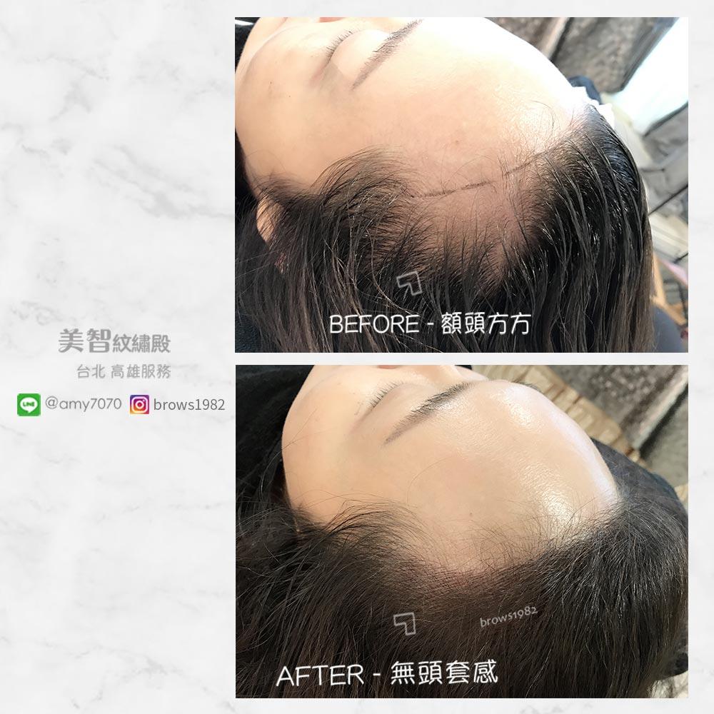 髮際線調整也能幫你改改變臉型!