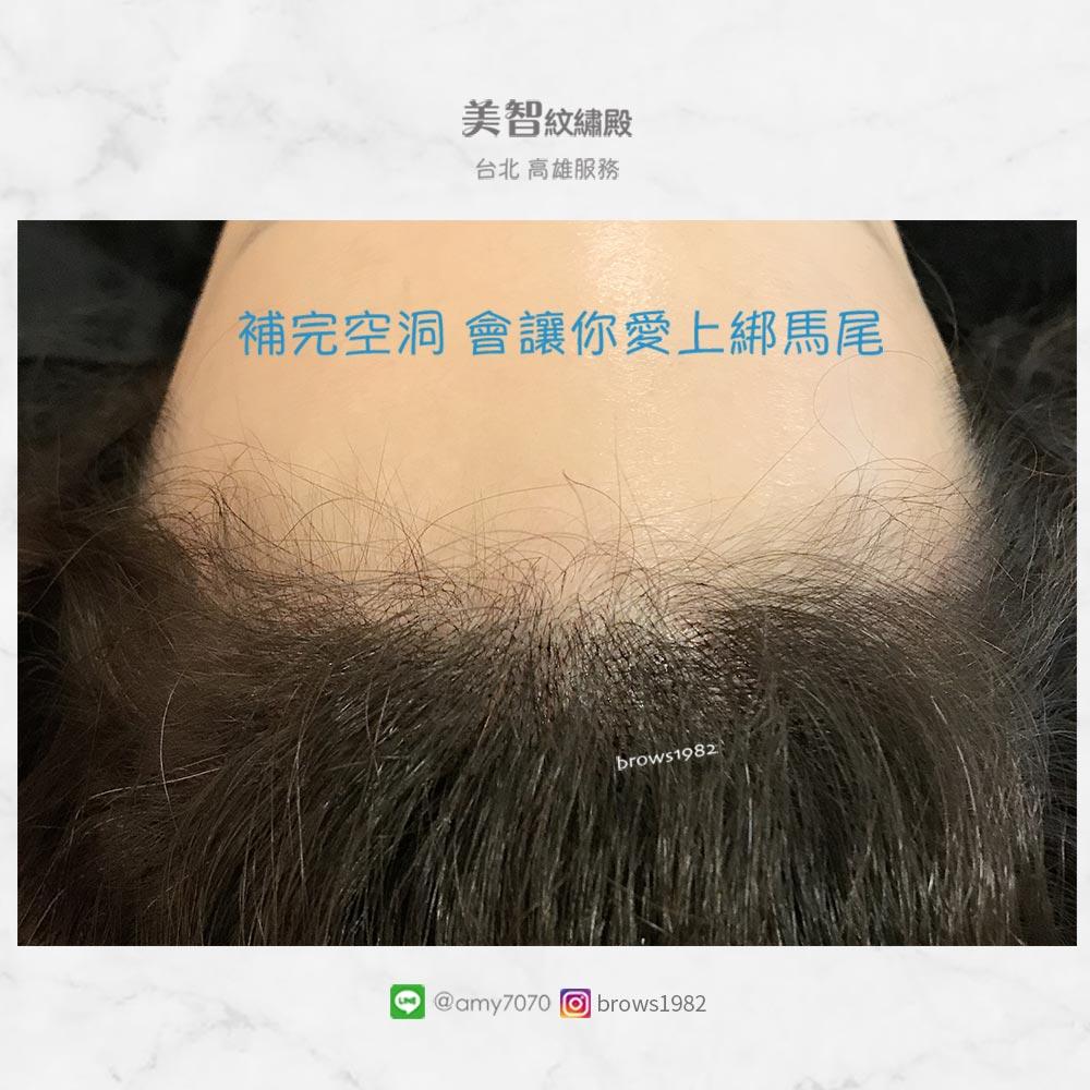 想要大方扎起頭髮,就來做髮際線調整!