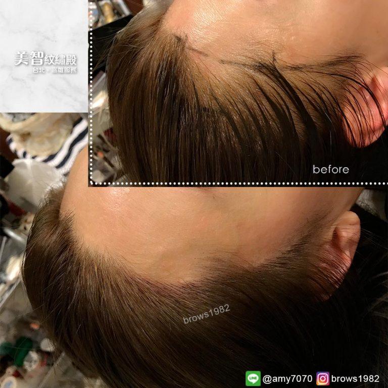頭髮染色也可以補髮際線