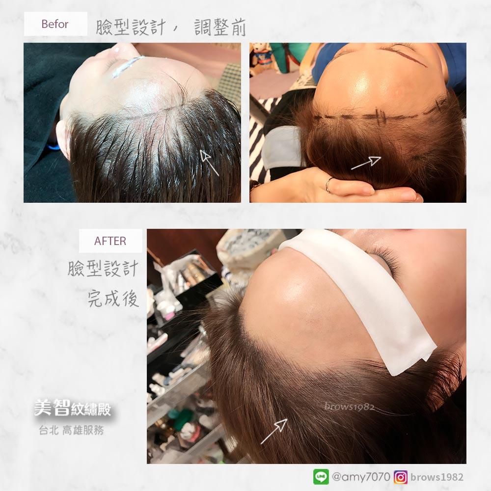 髮際線調整也能做臉型設計!