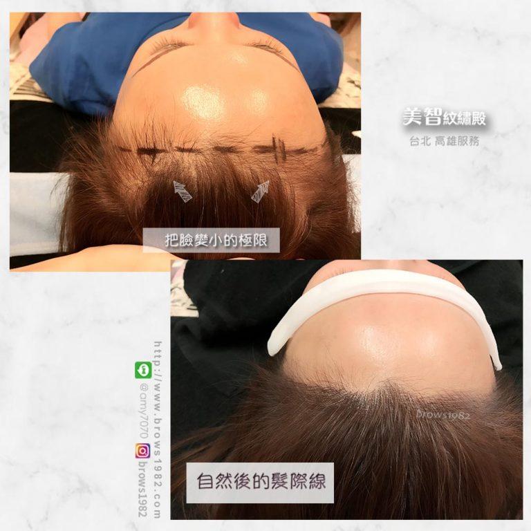 髮際線調整完後,線條幾乎融合於髮絲