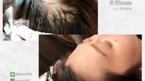 額角髮量單薄,調整髮際線也能變豐盈