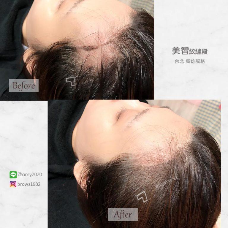 補齊的髮際線再也不會方方角角