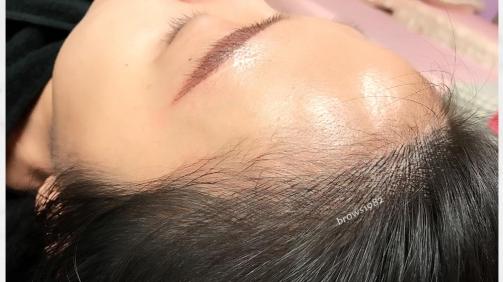 髮際線調整後與髮絲融合的髮際線