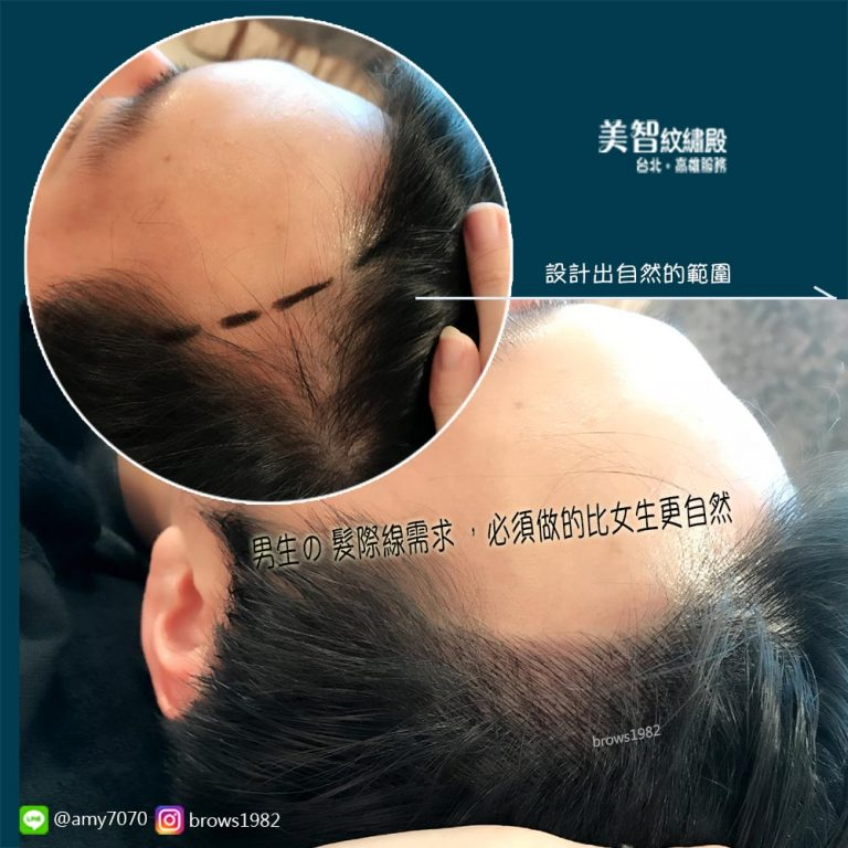美智紋繡殿量身設計的髮際線十分自然