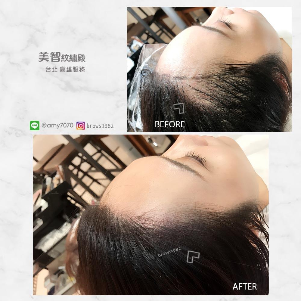 髮際線空洞交就讓「美智」幫你填補髮際線