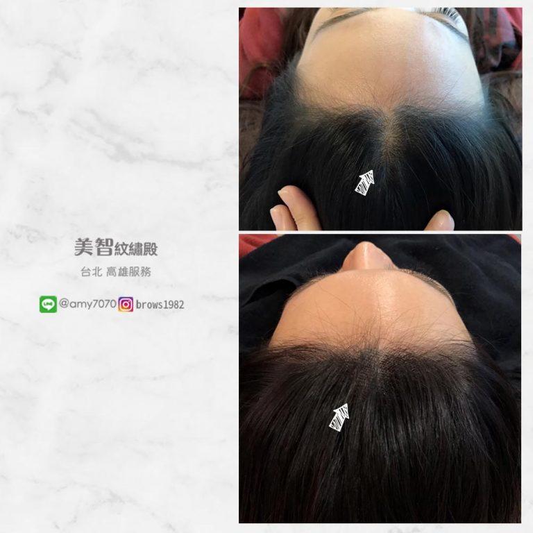 髮際線空洞推薦「美智」做髮際線調整