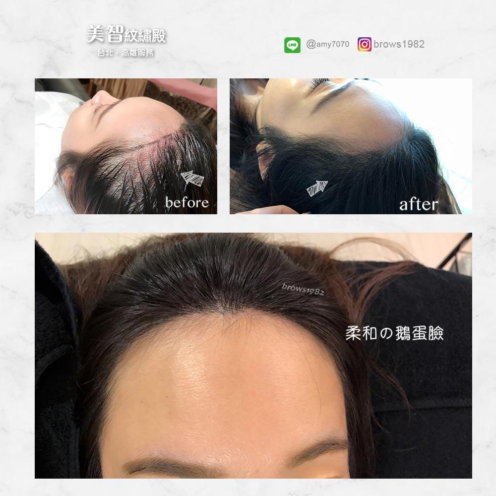 調整完的髮際線讓額頭圓潤,臉形線條看起來也柔和