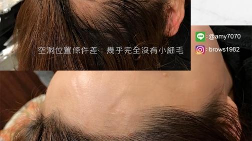 空洞位置條件差也能做出自然髮際線