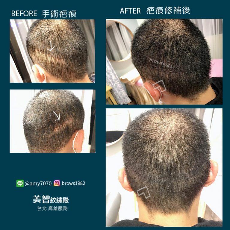 美智透過專業、精細手法修補髮際線空洞
